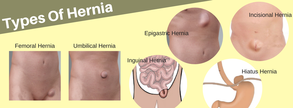 are there different types of hernia