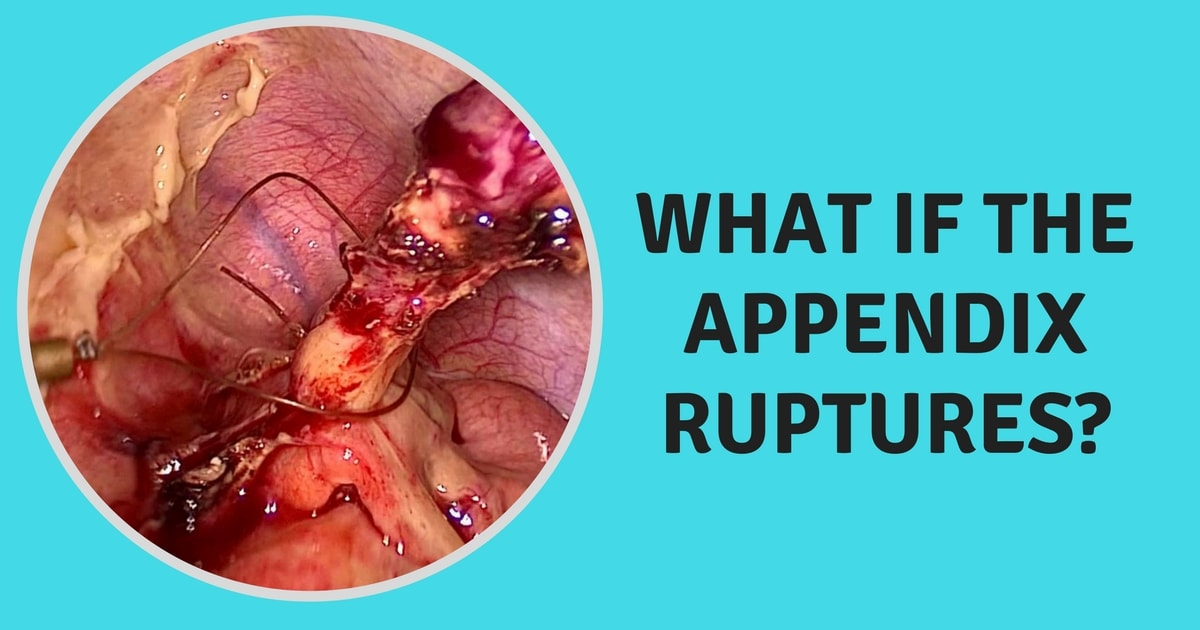 Image showing a ruptured appendix that is removed and that region is cleaned during a appendix surgery in Chennai to prevent infection.