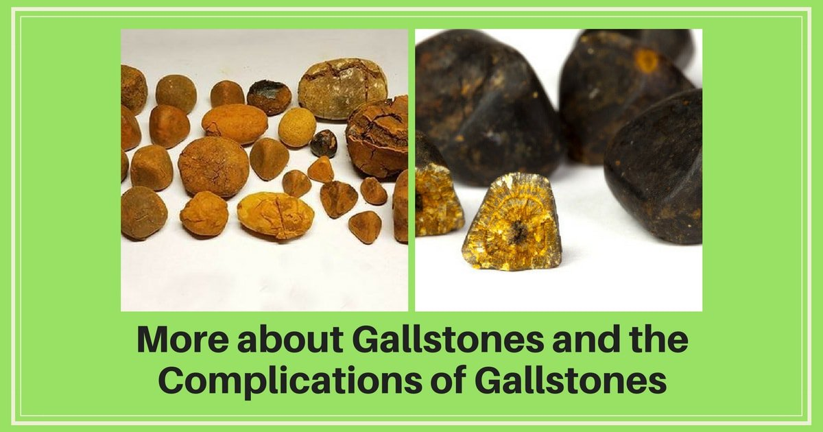 Dr. Maran, the gastro surgeon says that Gallbladder removal surgery is the only solution for all gallstone complications.