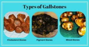 Cholesterol stones, pigment stones and mixed stones are types of Gallstones. Dr Maran does gallbladder removal surgery in Chennai.