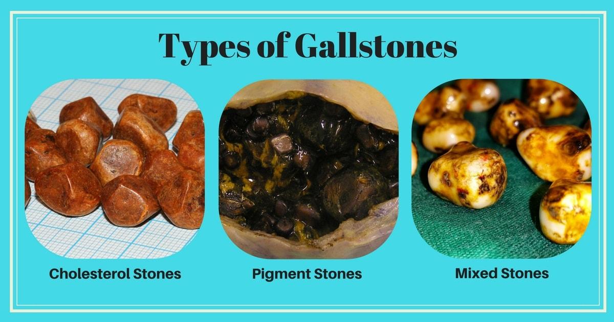 Gallbladder Removal Surgery in Chennai | Gallstones Treatment
