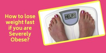 How to lose weight fast if you are Severely Obese?