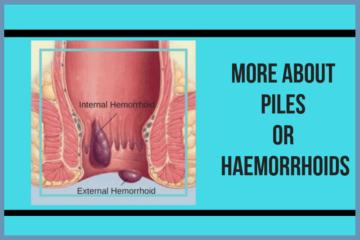 Piles or Hemorrhoids