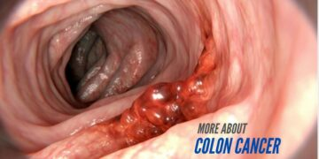More about Colon Cancer